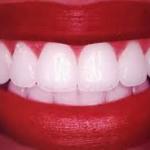 sorriso , denti