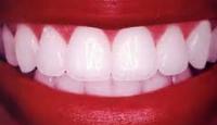 <!--:it-->Rigenerazione e ricrescita dei denti negli adulti ?<!--:-->
