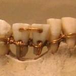 <!--:it-->I denti come causa di malattie e basse aspettative di vita nei secoli passati?<!--:-->
