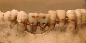 Dentista egiziano 3000 anni fa